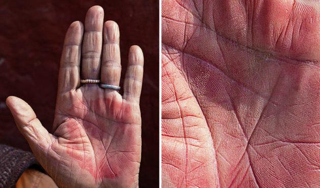 Красные ладони рук