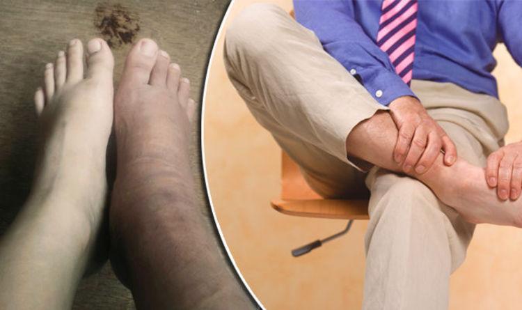 Почему появляются пятна на ногах при сахарном диабете,Post navigation