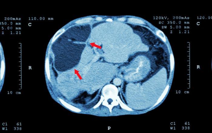 епатоцеллюлярная карцинома