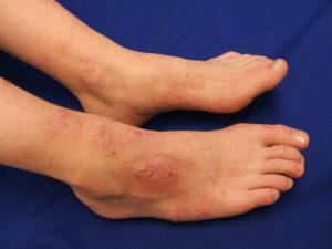 Дерматит на ногах - это воспаление в ответ на аллергическую реакцию