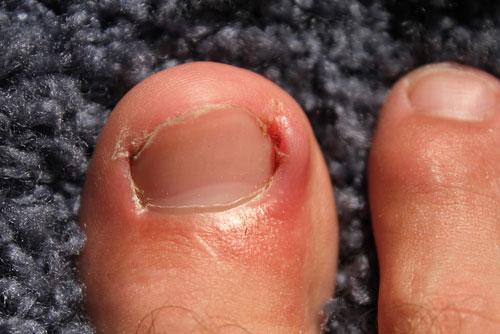 Все причины боли ногтей на ногах,Post navigation