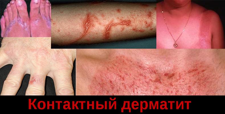 Контактный дерматит фото, симптомы, причины возникновения и как лечить,Post navigation