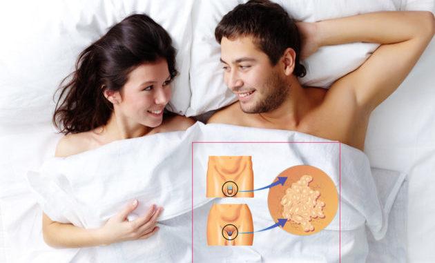 Половые связи