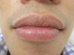 Белые точки под кожей на губах вызывают дискомфорт
