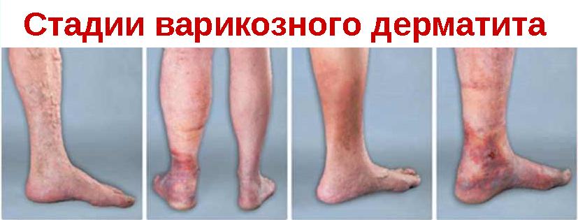 Варикозный дерматит нижних конечностей,Post navigation