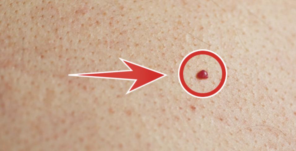Красные точки на теле как родинки фото