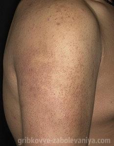 Фолликулярный кератоз на плече