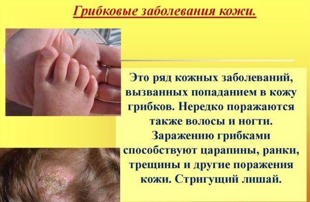 Грибковая инфекция на теле