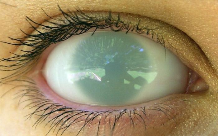 Виды пятен на глазном яблоке,Post navigation