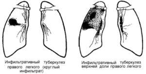 Особенности инфильтративного туберкулеза легких