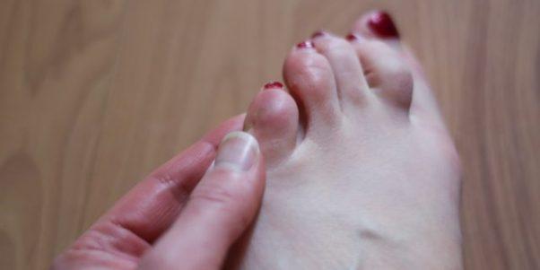 Что делать, если на мизинце ноги появилась мозоль