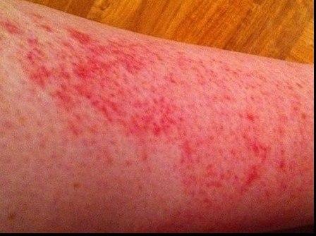 Почему появляется сыпь на щиколотках ног,Post navigation