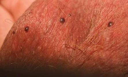 Черные точки на яичках у мужчин,Post navigation