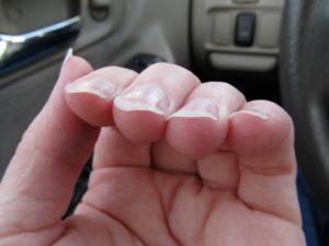 Ногти на руках могут загибаться из-за разных причин