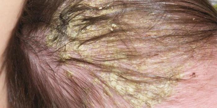 Желтые корочки - это признак себорейного дерматита
