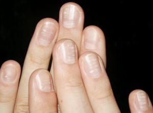 Белые полоски на ногтях появляются в результате разных заболеваний