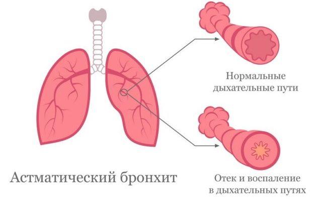 Механизм развития патологического процесса