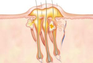 Фурункул развивается в результате бактериальной инфекции