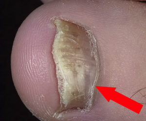 Онихомикоз - грибок ногтей фото